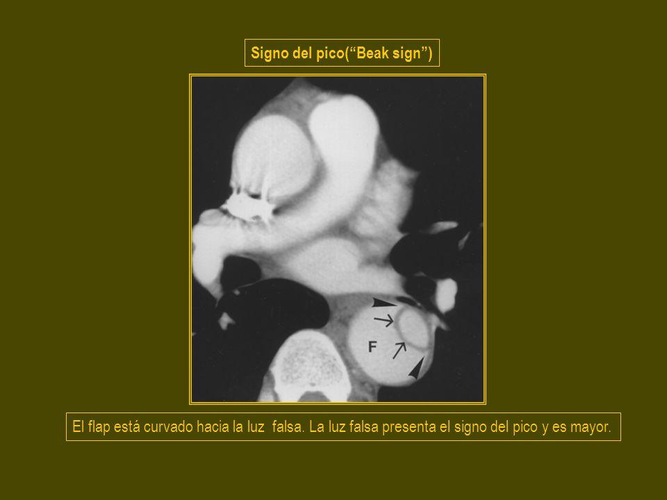 Signo del pico( Beak sign )