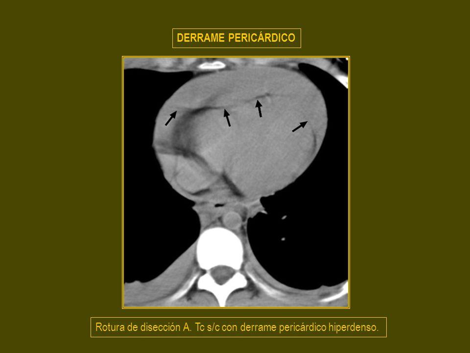 DERRAME PERICÁRDICO Rotura de disección A. Tc s/c con derrame pericárdico hiperdenso.
