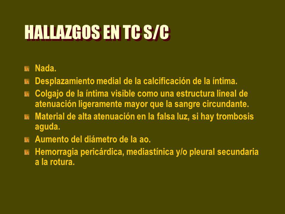 HALLAZGOS EN TC S/C Nada.