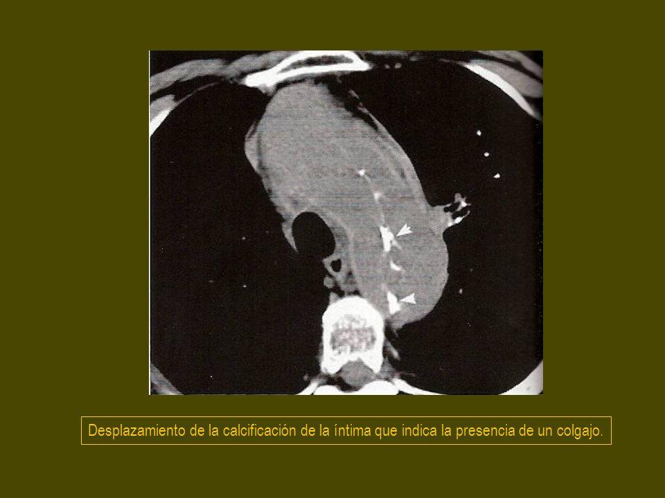 Desplazamiento de la calcificación de la íntima que indica la presencia de un colgajo.