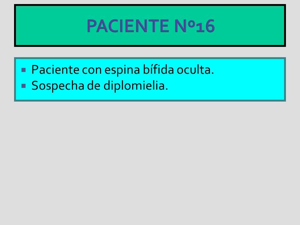 PACIENTE Nº16 Paciente con espina bífida oculta.