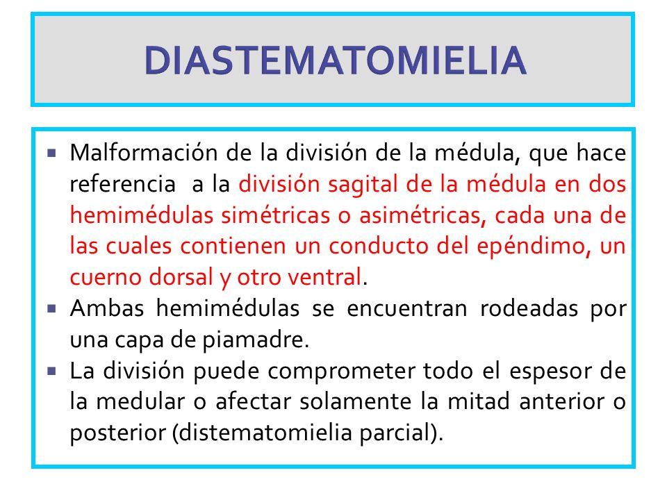 DIASTEMATOMIELIA