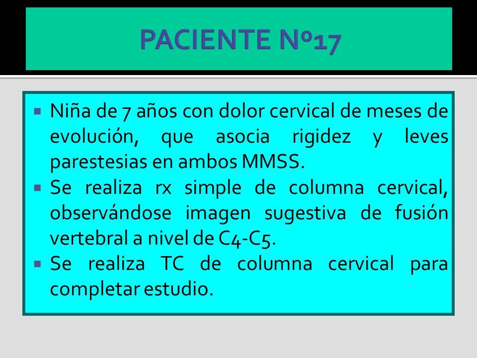 PACIENTE Nº17 Niña de 7 años con dolor cervical de meses de evolución, que asocia rigidez y leves parestesias en ambos MMSS.