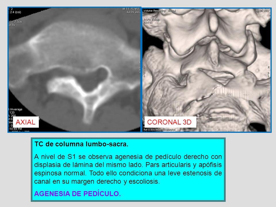 AXIAL CORONAL 3D. TC de columna lumbo-sacra.