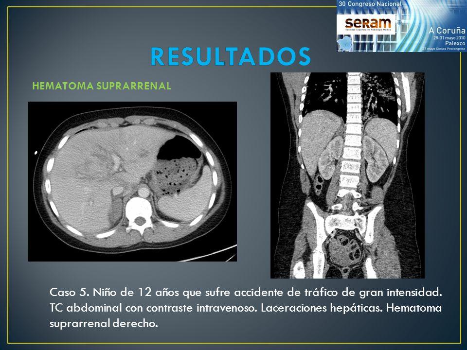 RESULTADOS HEMATOMA SUPRARRENAL.