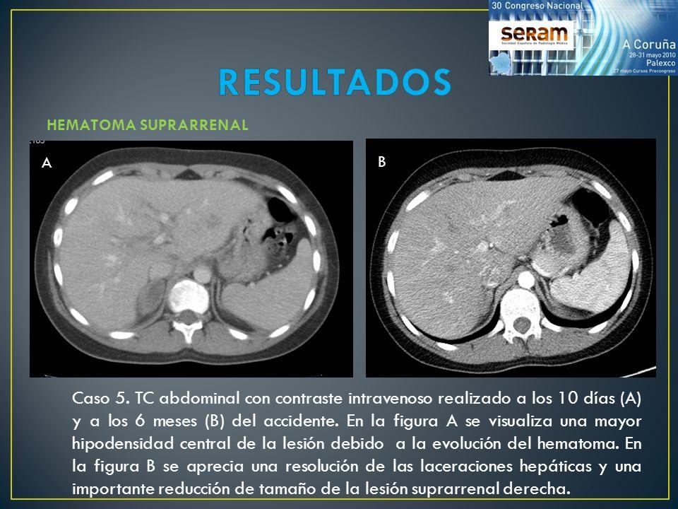 RESULTADOS HEMATOMA SUPRARRENAL. A. B.
