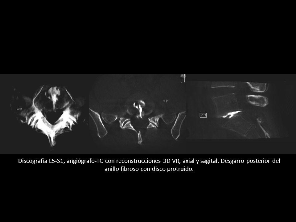 Discografía L5-S1, angiógrafo-TC con reconstrucciones 3D VR, axial y sagital: Desgarro posterior del anillo fibroso con disco protruido.