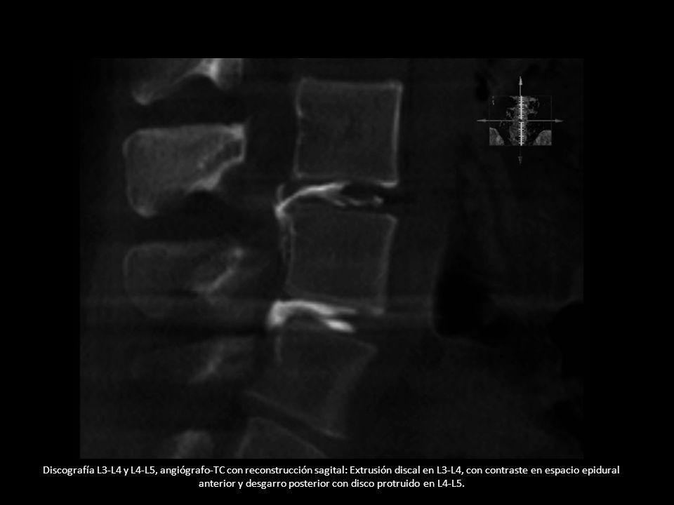Discografía L3-L4 y L4-L5, angiógrafo-TC con reconstrucción sagital: Extrusión discal en L3-L4, con contraste en espacio epidural anterior y desgarro posterior con disco protruido en L4-L5.