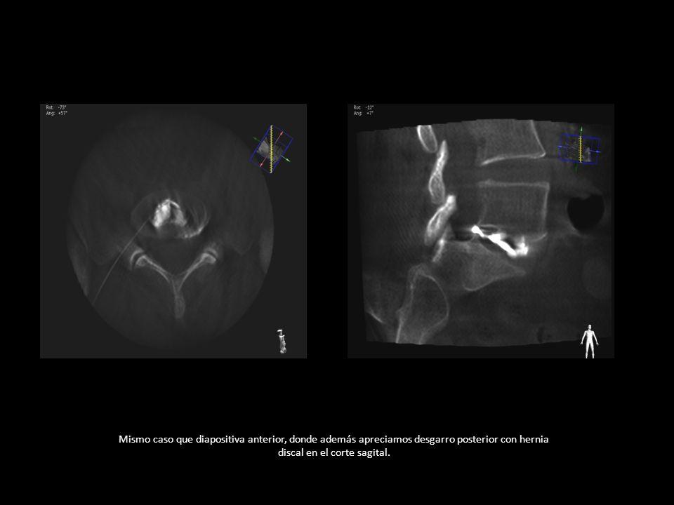 Mismo caso que diapositiva anterior, donde además apreciamos desgarro posterior con hernia discal en el corte sagital.