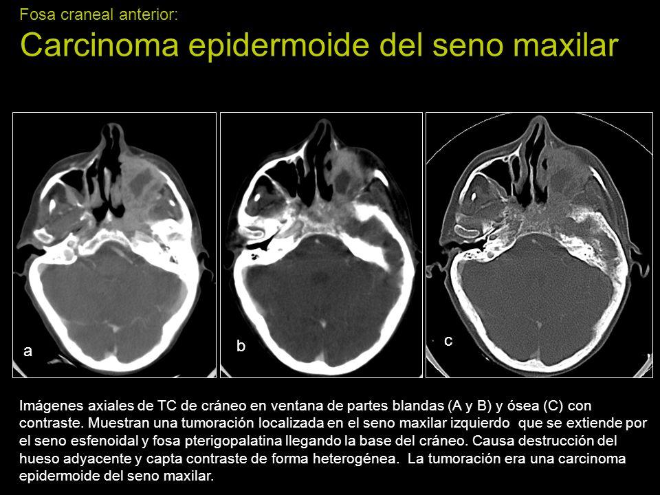 Fosa craneal anterior: Carcinoma epidermoide del seno maxilar