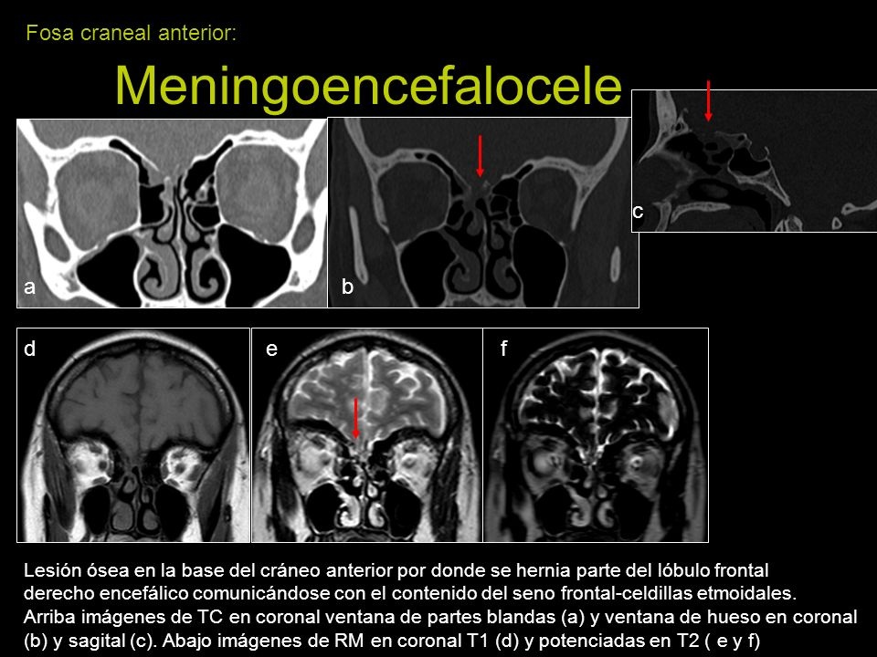 Fosa craneal anterior: Meningoencefalocele