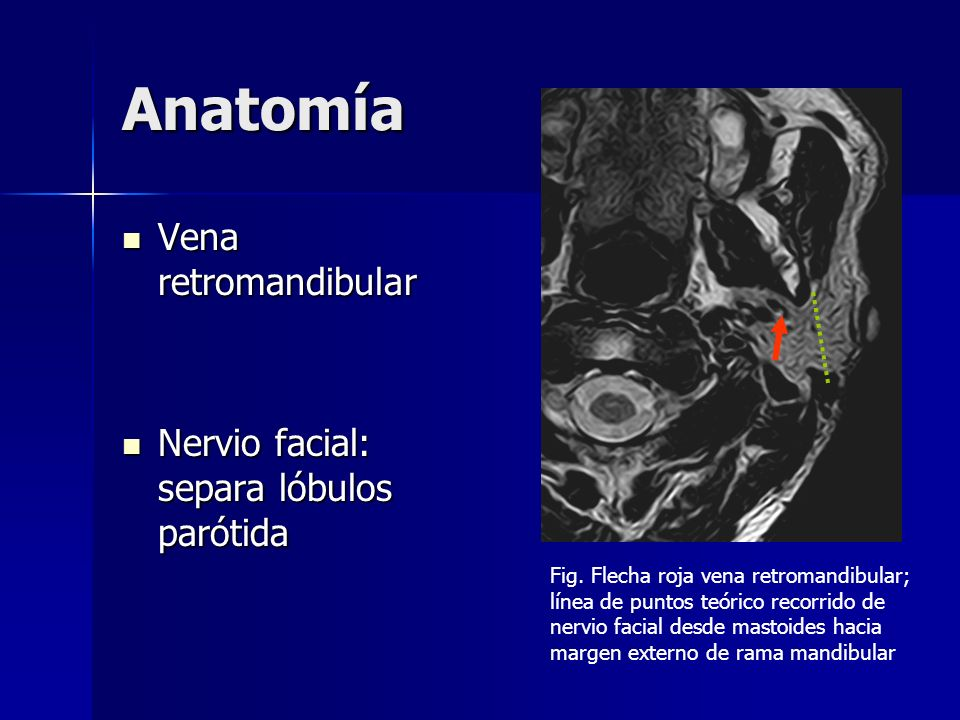 Anatomía Vena retromandibular Nervio facial: separa lóbulos parótida
