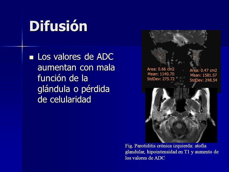 Difusión Los valores de ADC aumentan con mala función de la glándula o pérdida de celularidad.