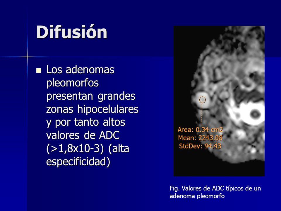 Difusión Los adenomas pleomorfos presentan grandes zonas hipocelulares y por tanto altos valores de ADC (>1,8x10-3) (alta especificidad)