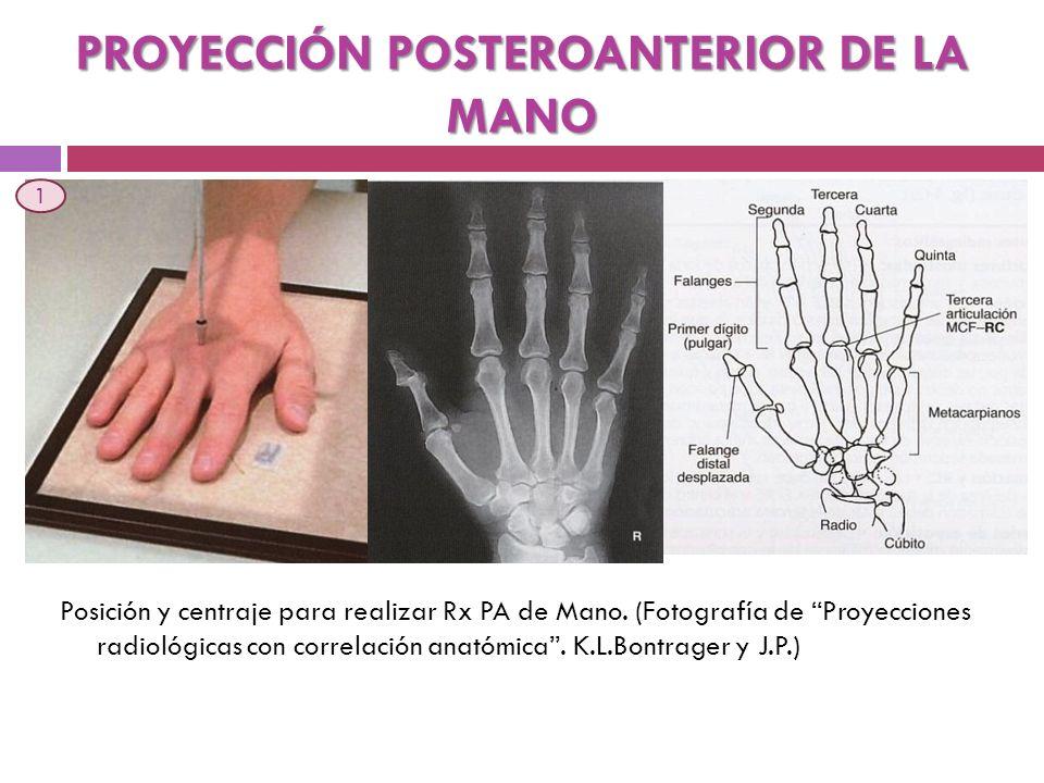 PROYECCIÓN POSTEROANTERIOR DE LA MANO