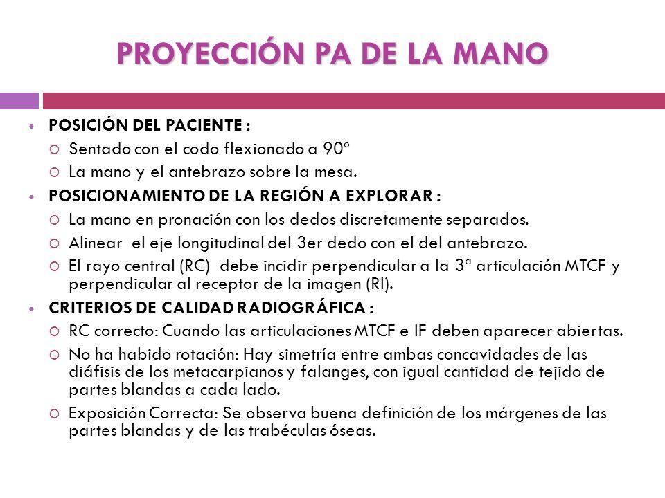 PROYECCIÓN PA DE LA MANO