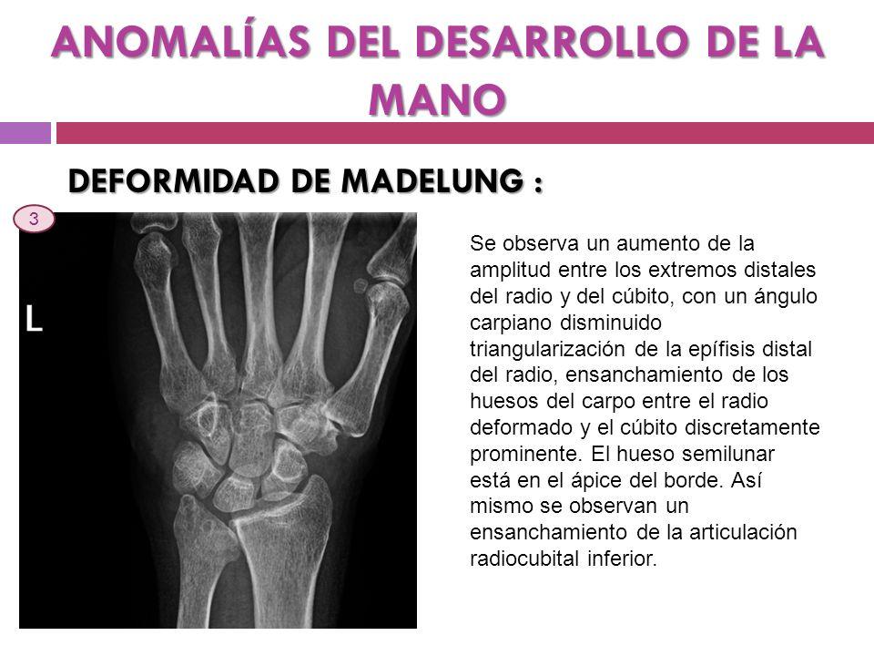 ANOMALÍAS DEL DESARROLLO DE LA MANO