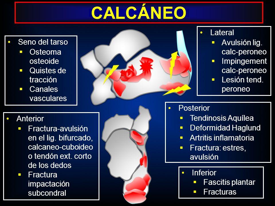 CALCÁNEO Lateral Avulsión lig. calc-peroneo Impingement calc-peroneo