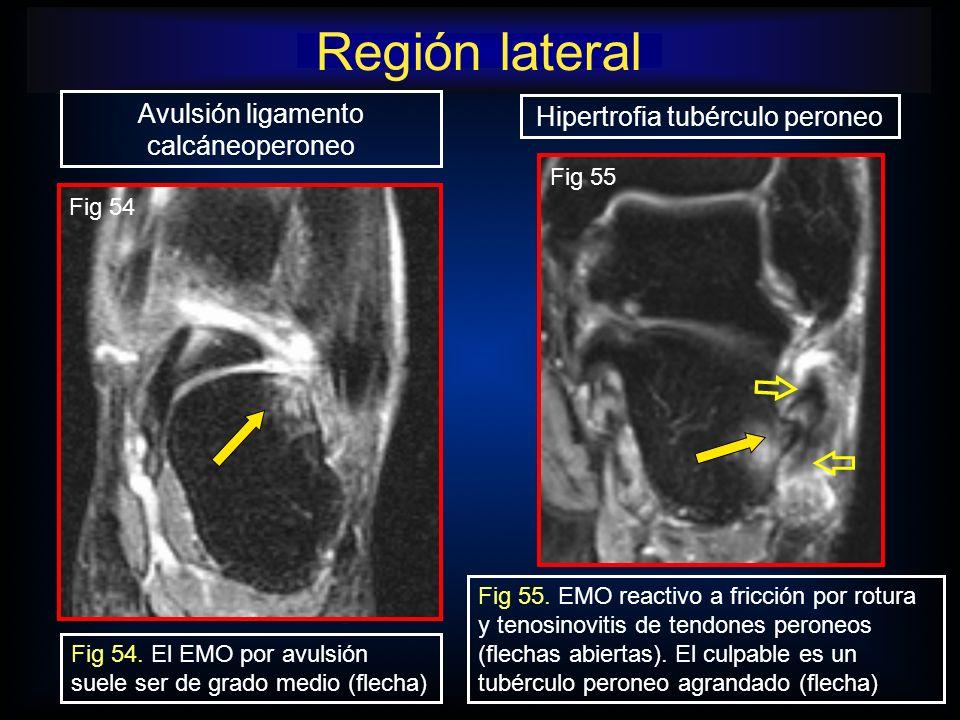 Región lateral Avulsión ligamento calcáneoperoneo
