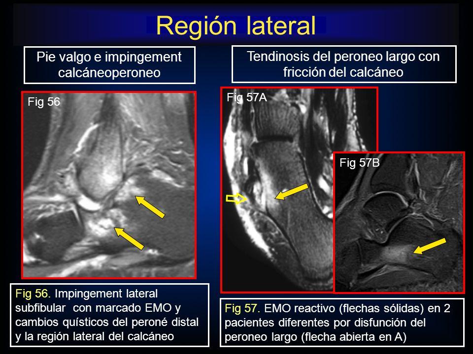 Región lateral Pie valgo e impingement