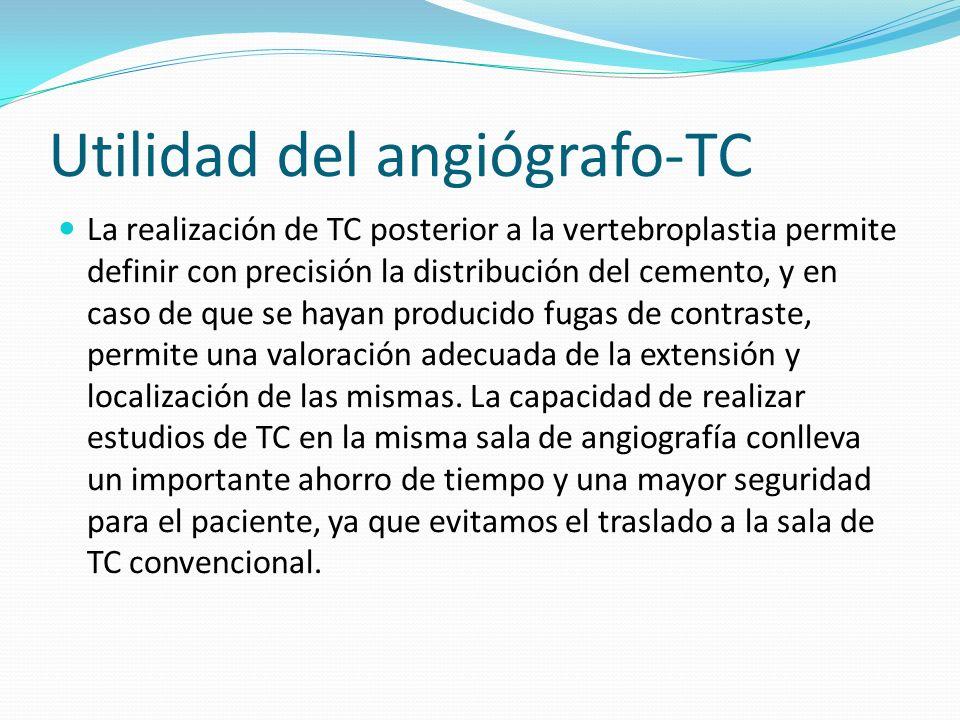 Utilidad del angiógrafo-TC