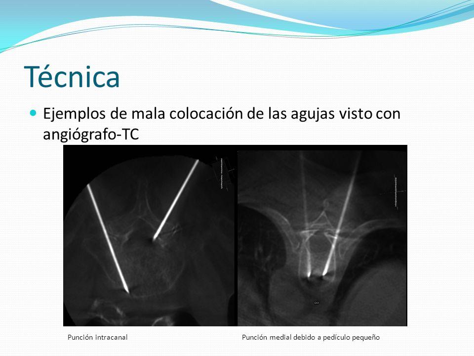 Técnica Ejemplos de mala colocación de las agujas visto con angiógrafo-TC.