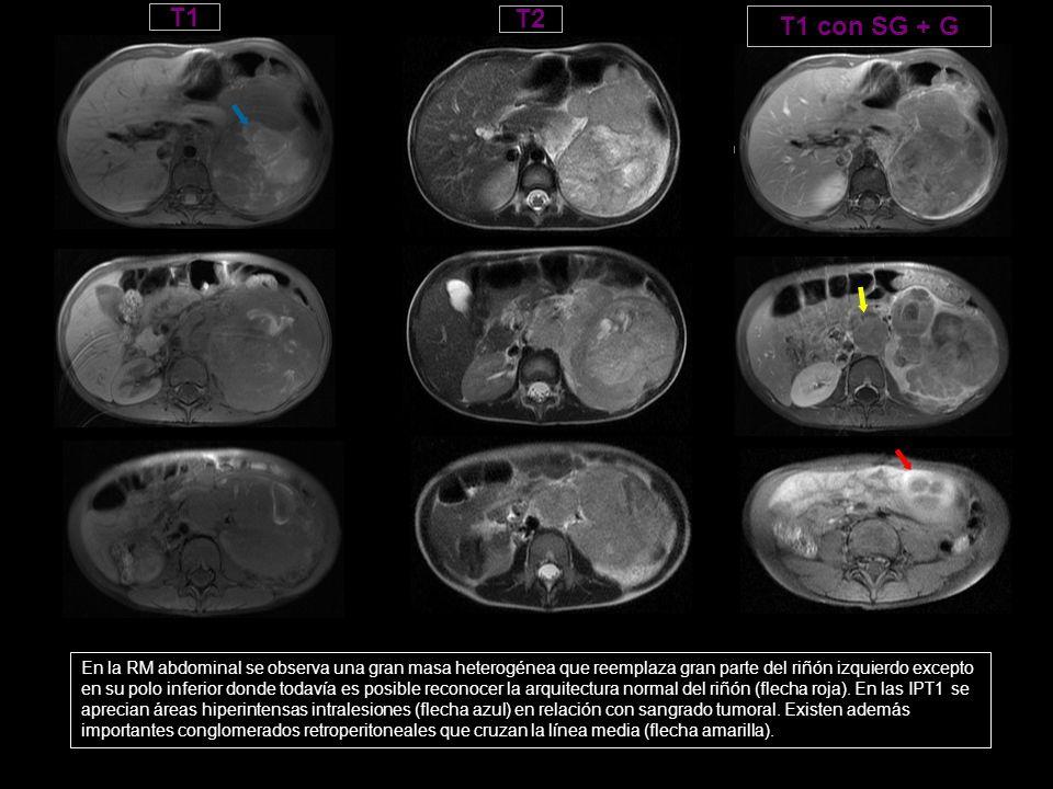 T1T2. T1 con SG + G. Hipo en T1. Masa con áreas de alta intensidad en relación con sangrado, adenopatias retroperitoneales.