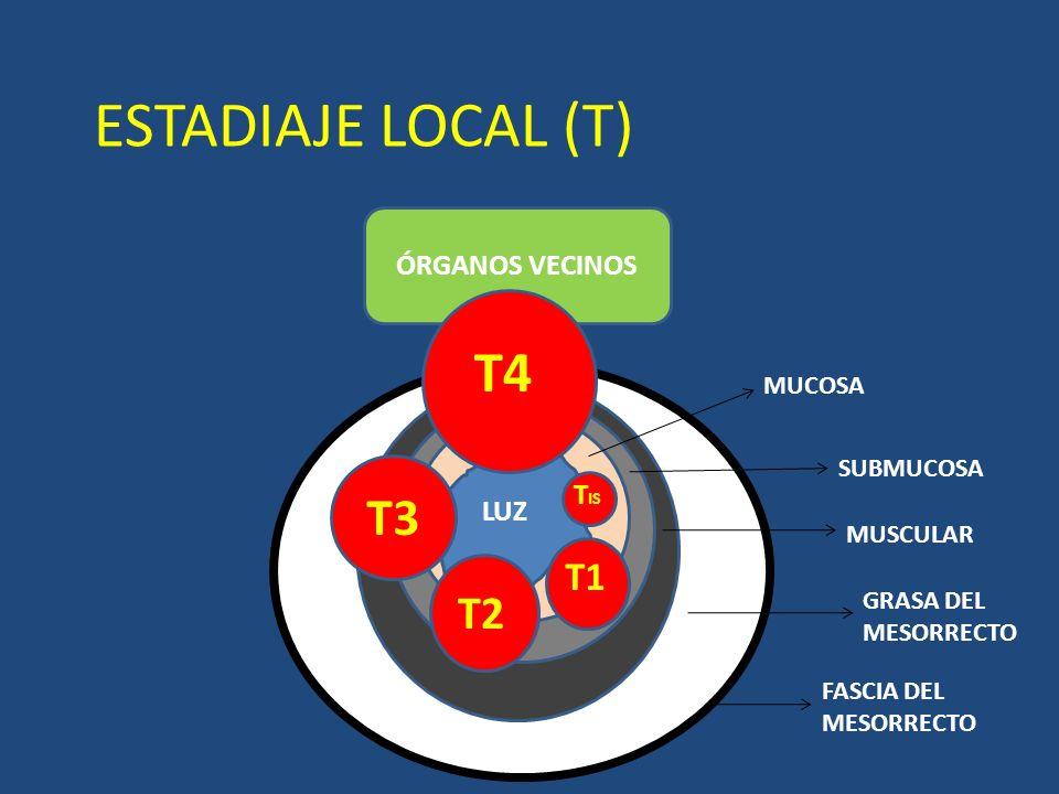 ESTADIAJE LOCAL (T) T4 T3 T2 T1 ÓRGANOS VECINOS TIS LUZ MUCOSA
