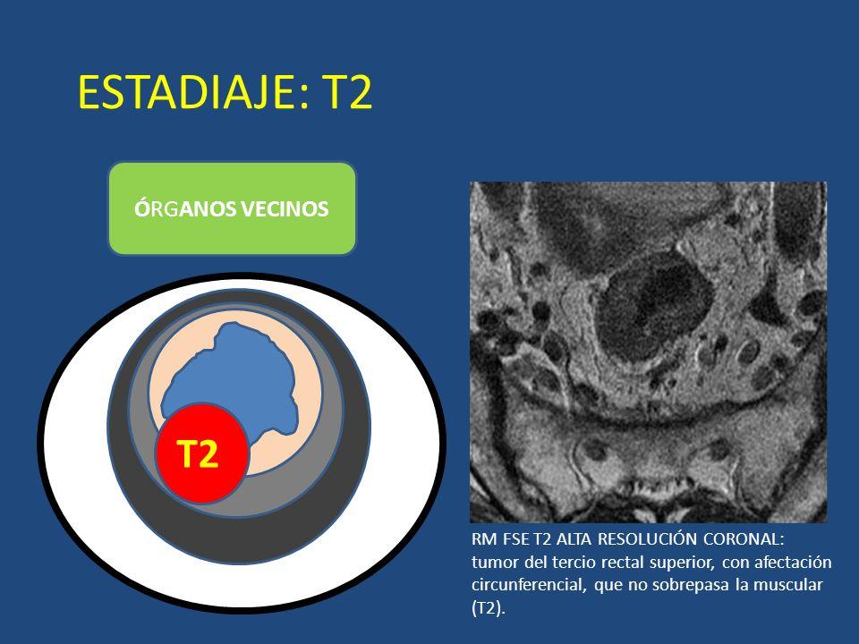 ESTADIAJE: T2 T2 ÓRGANOS VECINOS LUZ