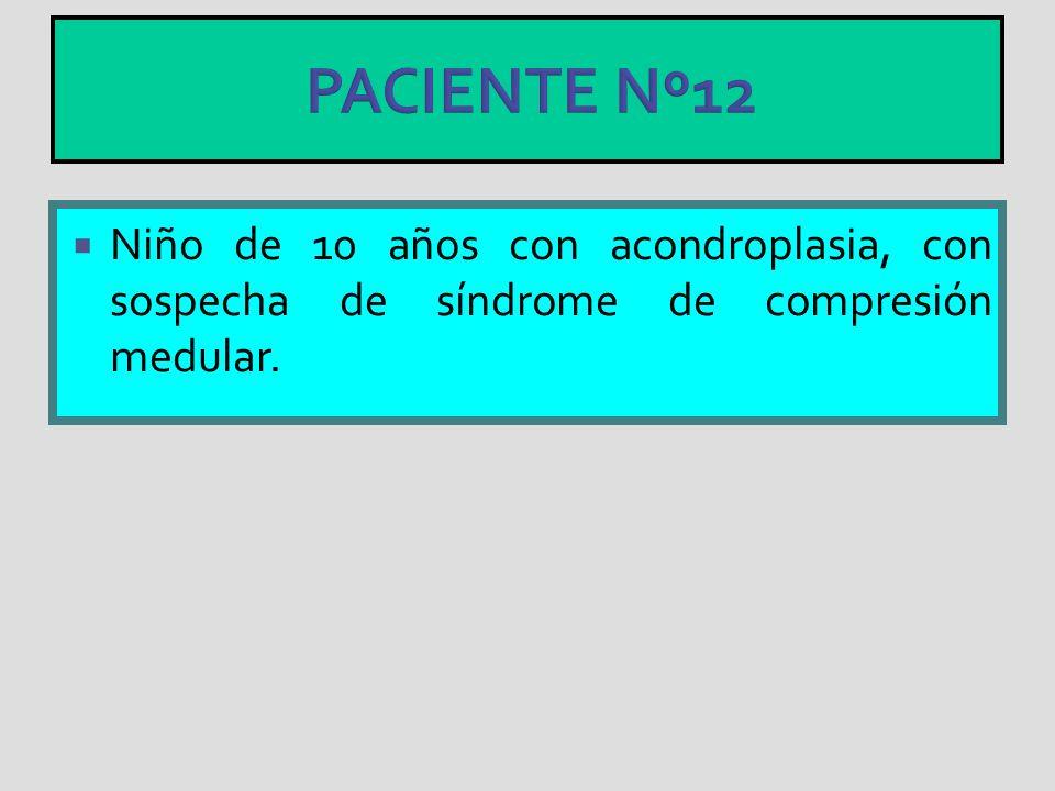 PACIENTE Nº12 Niño de 10 años con acondroplasia, con sospecha de síndrome de compresión medular.