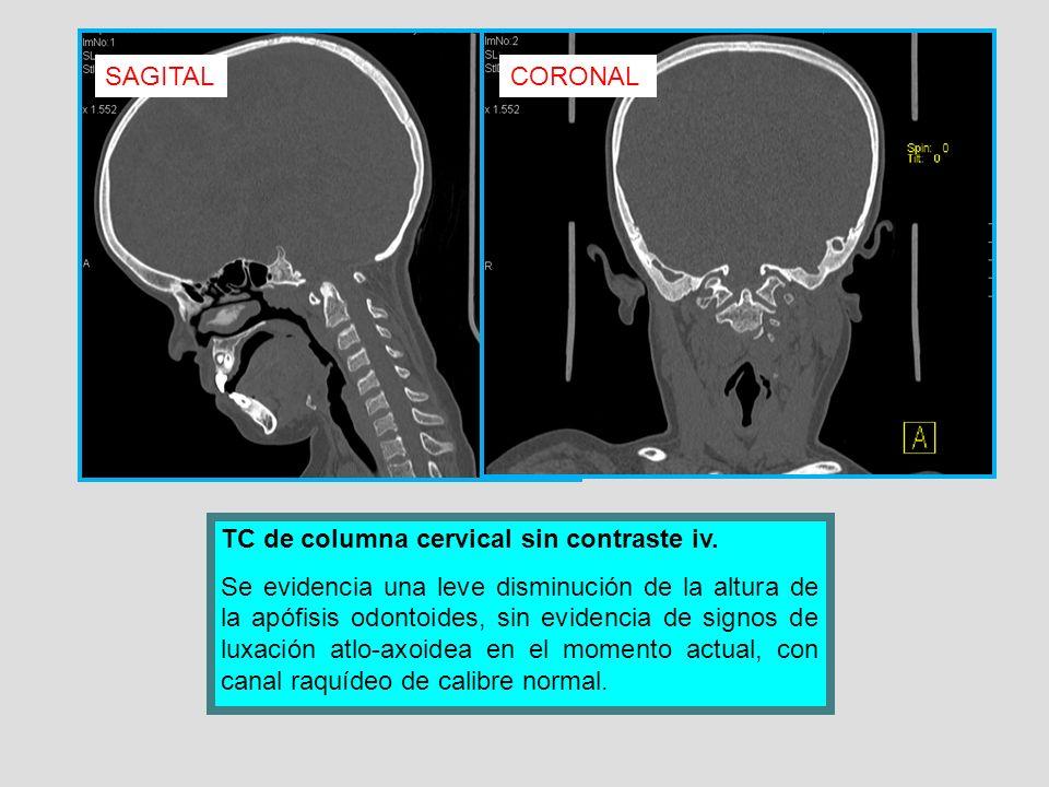 SAGITAL CORONAL. TC de columna cervical sin contraste iv.