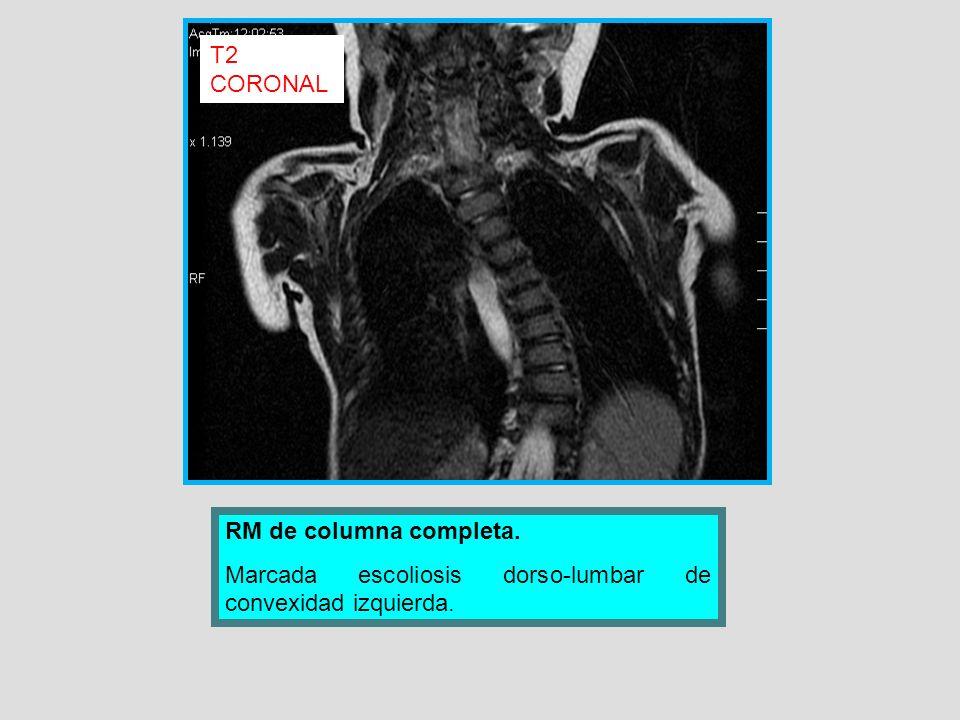 T2 CORONAL RM de columna completa. Marcada escoliosis dorso-lumbar de convexidad izquierda.