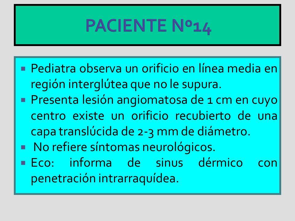 PACIENTE Nº14 Pediatra observa un orificio en línea media en región interglútea que no le supura.