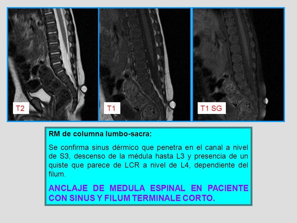 T2 T1. T1 SG. RM de columna lumbo-sacra: