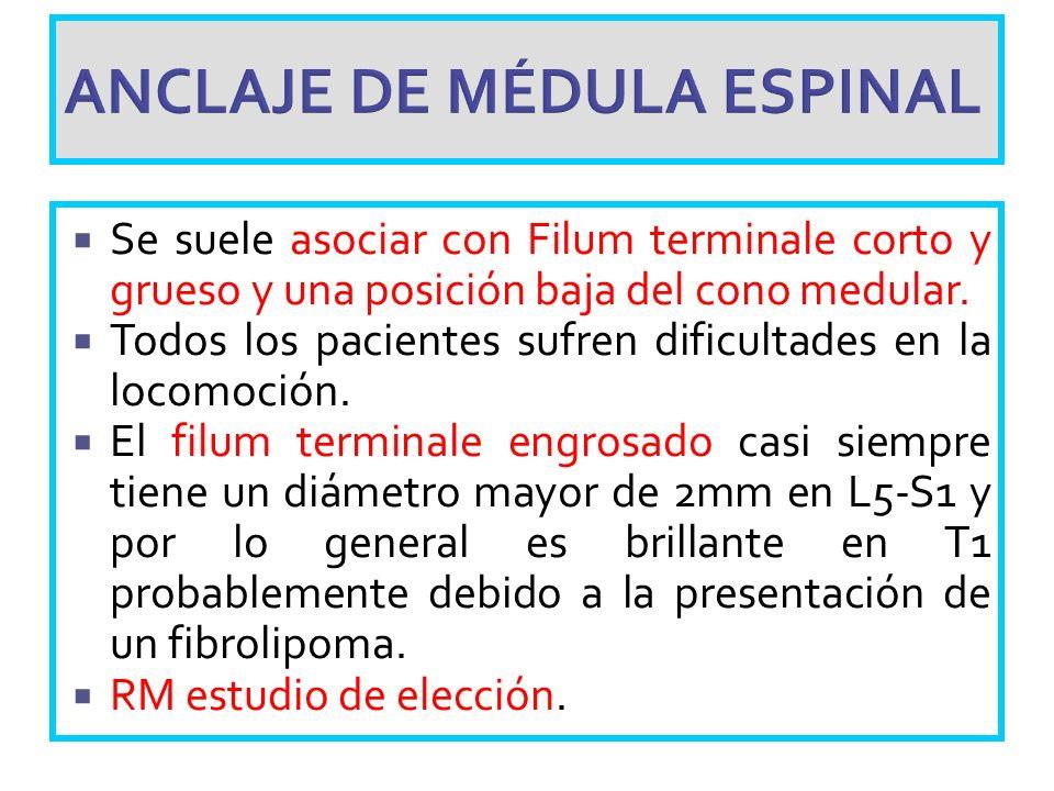 ANCLAJE DE MÉDULA ESPINAL