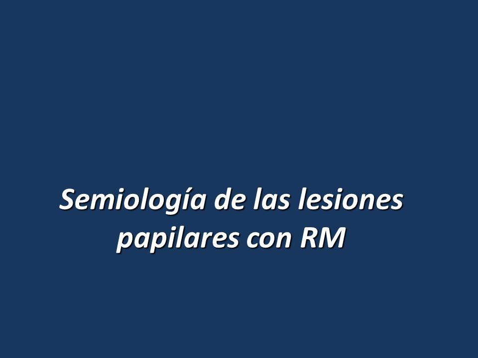 Semiología de las lesiones papilares con RM