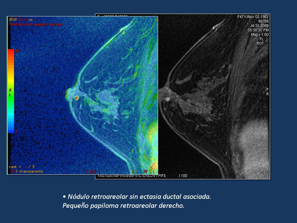 Nódulo retroareolar sin ectasia ductal asociada.