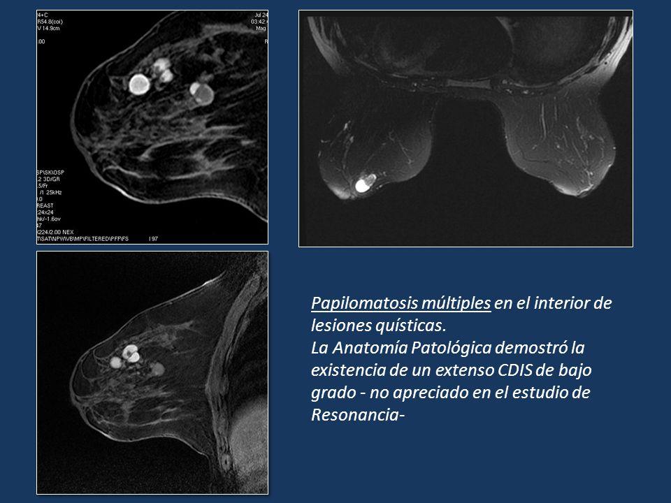 Papilomatosis múltiples en el interior de lesiones quísticas.