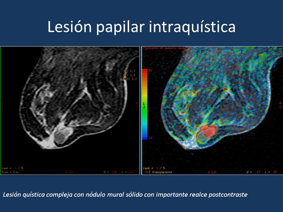 Lesión papilar intraquística