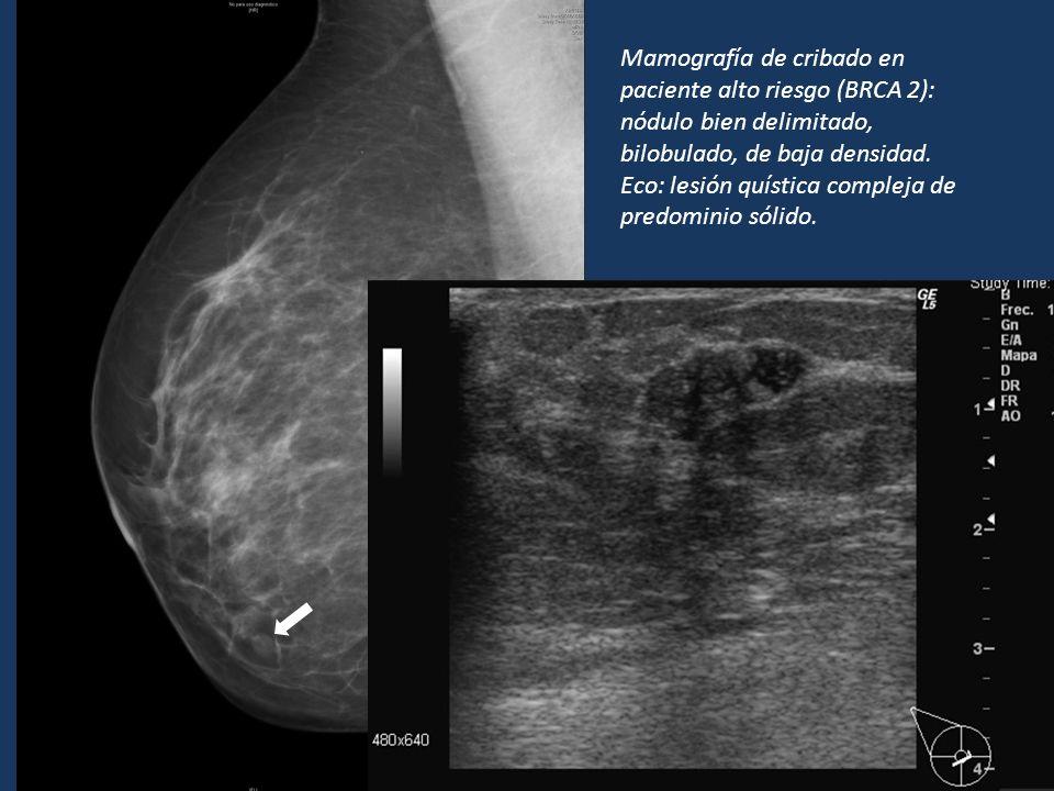 Mamografía de cribado en paciente alto riesgo (BRCA 2): nódulo bien delimitado, bilobulado, de baja densidad.