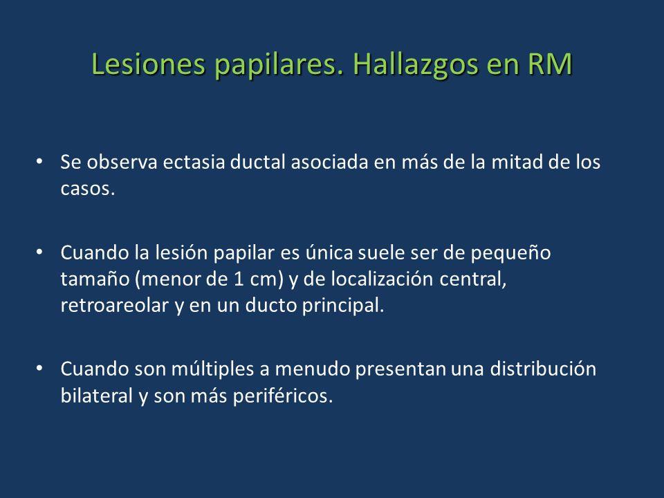 Lesiones papilares. Hallazgos en RM