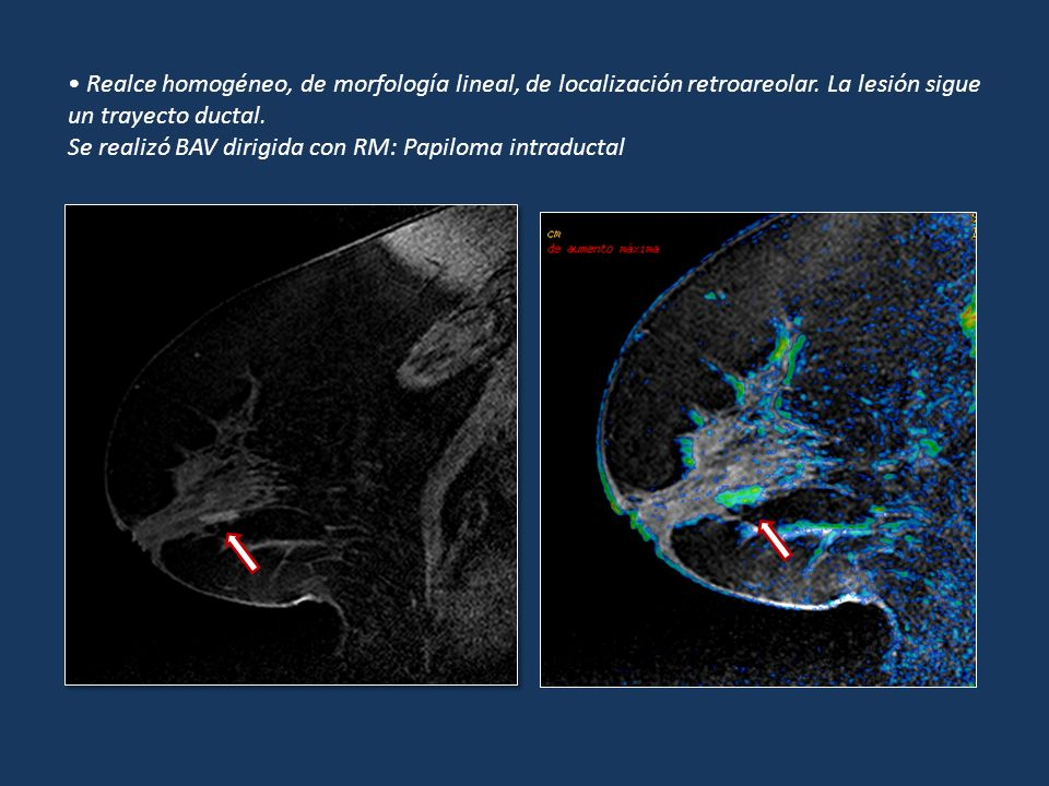 Realce homogéneo, de morfología lineal, de localización retroareolar