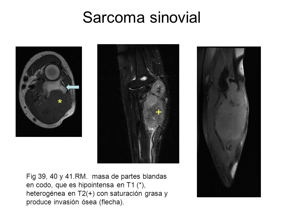 Sarcoma sinovial* +
