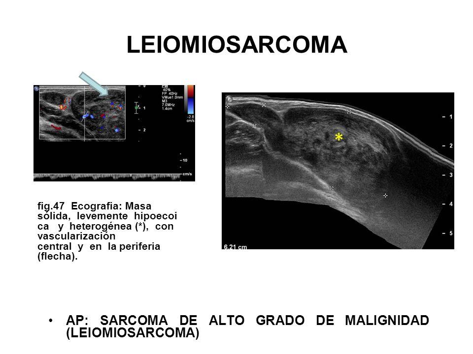 LEIOMIOSARCOMA *