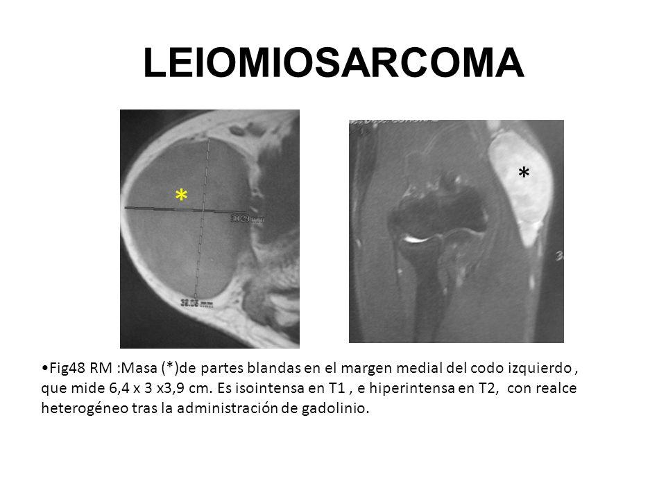 LEIOMIOSARCOMA * *