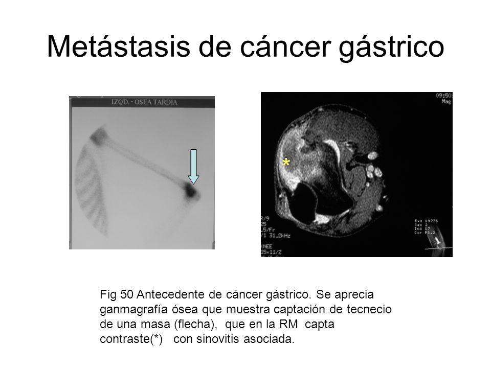 Metástasis de cáncer gástrico