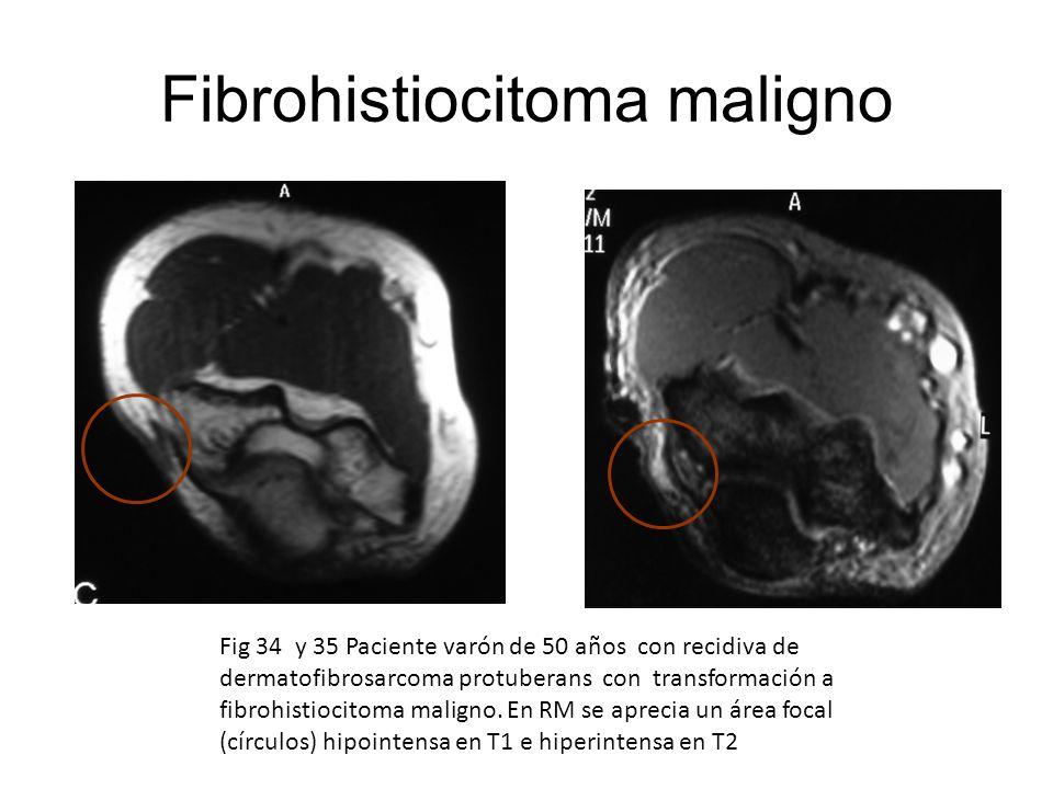 Fibrohistiocitoma maligno