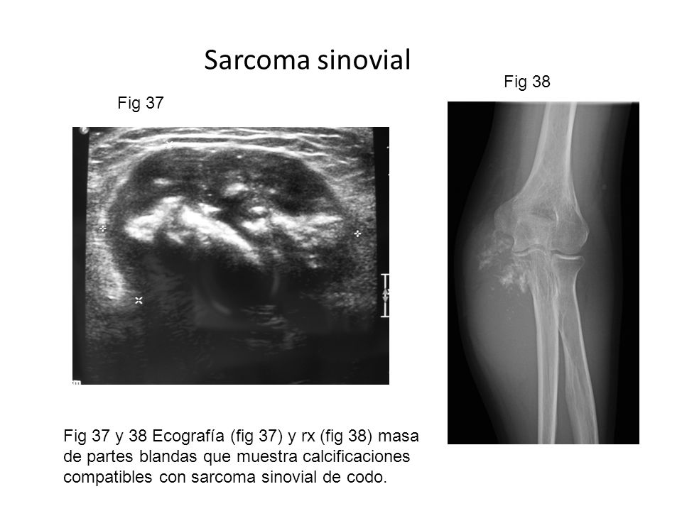 Sarcoma sinovial Fig 38 Fig 37