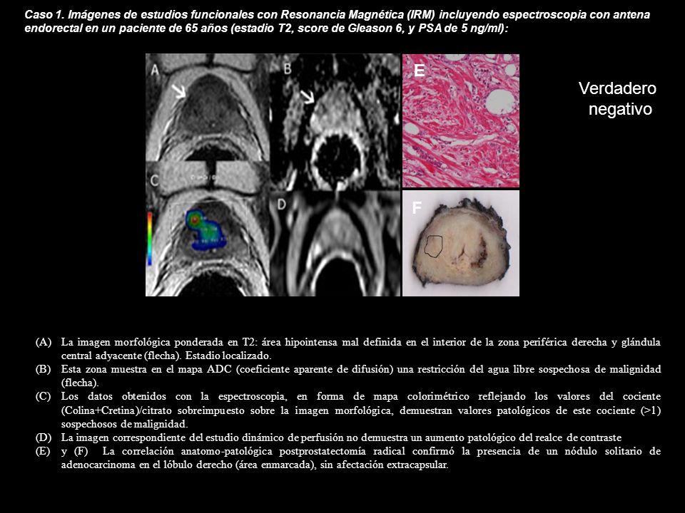 Caso 1. Imágenes de estudios funcionales con Resonancia Magnética (IRM) incluyendo espectroscopia con antena endorectal en un paciente de 65 años (estadio T2, score de Gleason 6, y PSA de 5 ng/ml):