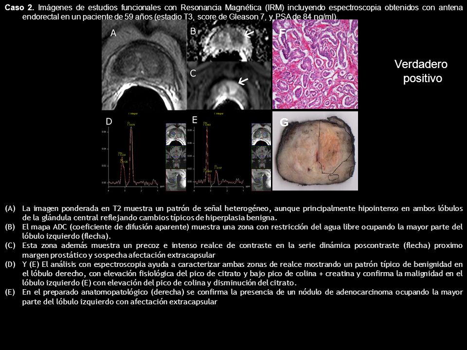 Caso 2. Imágenes de estudios funcionales con Resonancia Magnética (IRM) incluyendo espectroscopia obtenidos con antena endorectal en un paciente de 59 años (estadio T3, score de Gleason 7, y PSA de 84 ng/ml).